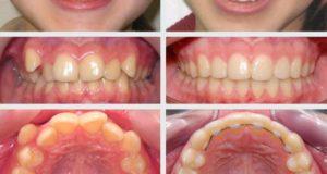 Методы выравнивания зубов у детей и взрослых