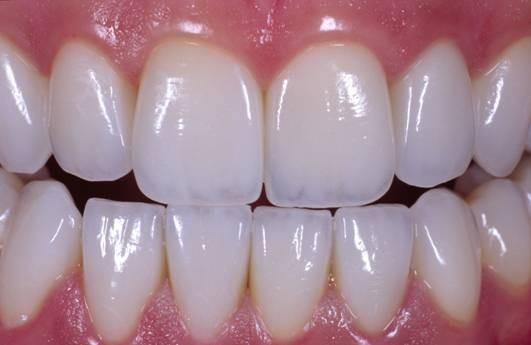 Почему керамические коронки на зубы лучше?
